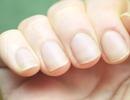 كيف تحمي أظافرك من التعقيم المستمر لليدين؟